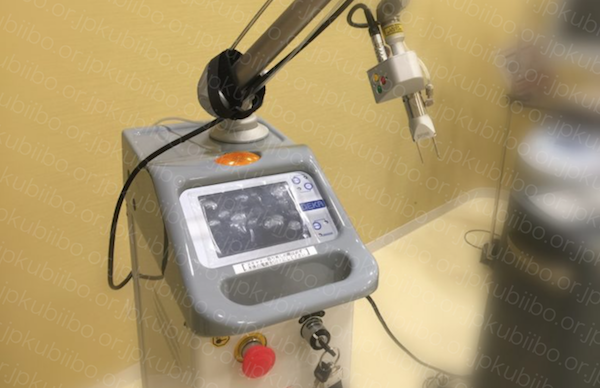 炭酸ガスレーザー イボ