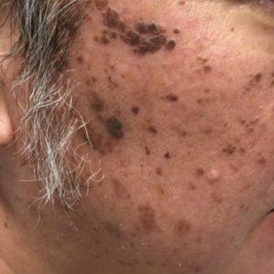 老人性イボの治療、除去方法
