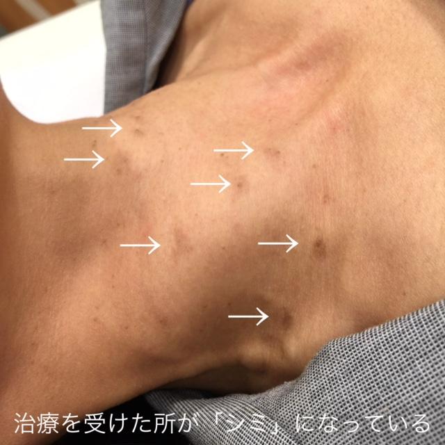 イボ治療は皮膚科